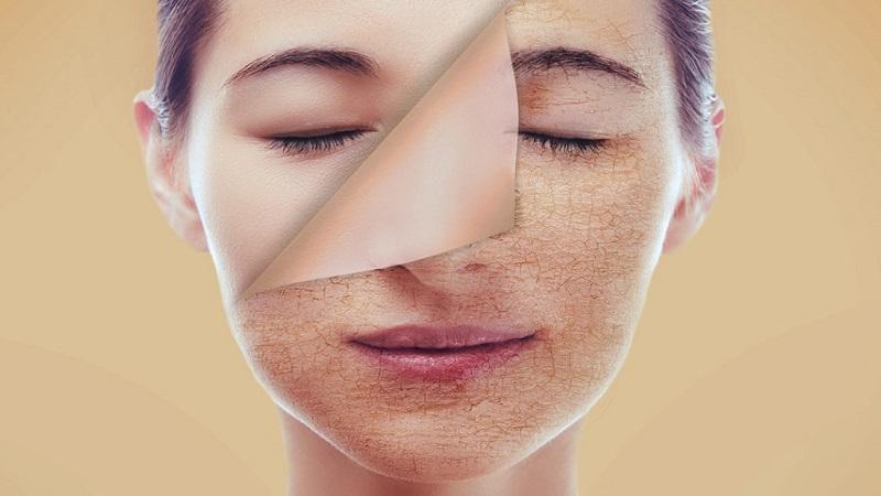 درمان خشکی پوست-تشخیص و روشهای مراقبت | بهترین کلینیک زیبایی اصفهان