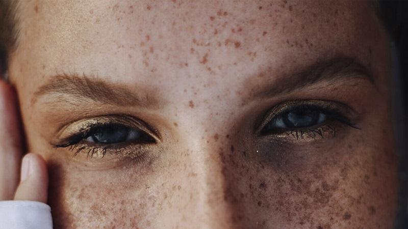 لک های پوستی چیست؟   بهترین کلینیک زیبایی اصفهان